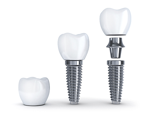 Diagram of the components used in dental implant restoration at Summercrest Dental, in Beaverton, OR