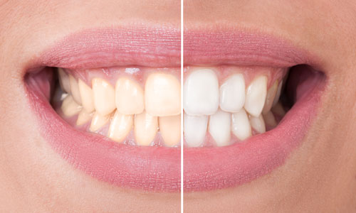 Before and after photo of woman smiling after professional teeth whitening treatment from Summercrest Dental